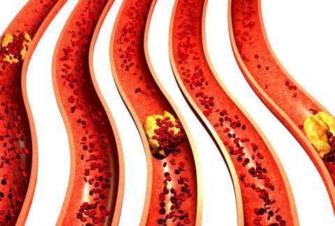 冠状动脉有了斑块,狭窄了百分之三十,如何降低危险性?