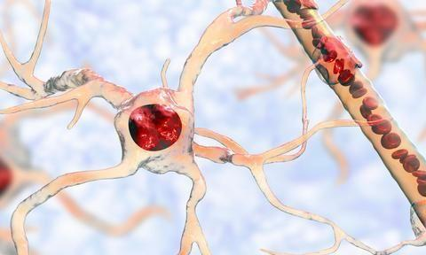 为什么冠状动脉粥样硬化那么可怕?掌握疾病的防与治,很重要