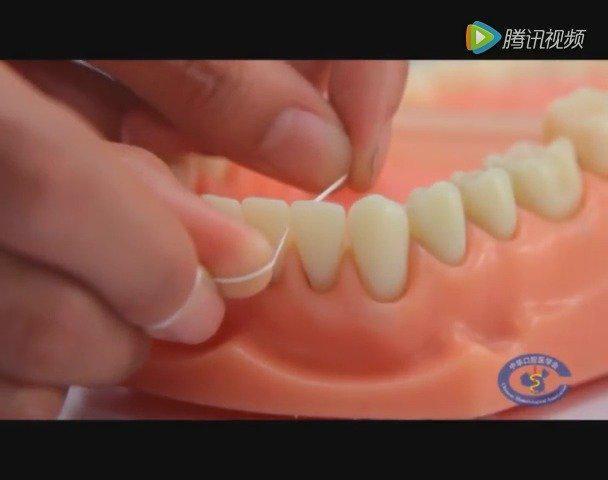牙线不会让牙缝变大,还能让你多活6.4年