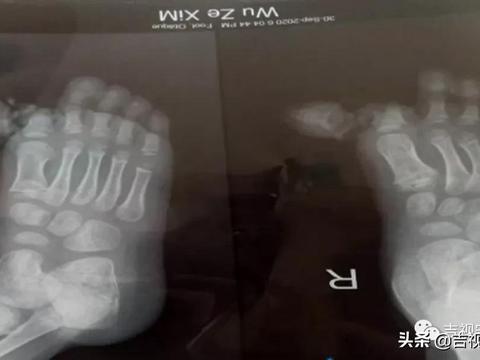 孩子家中受伤拇指被压断,幼儿园收费一个月,竟没交意外险...