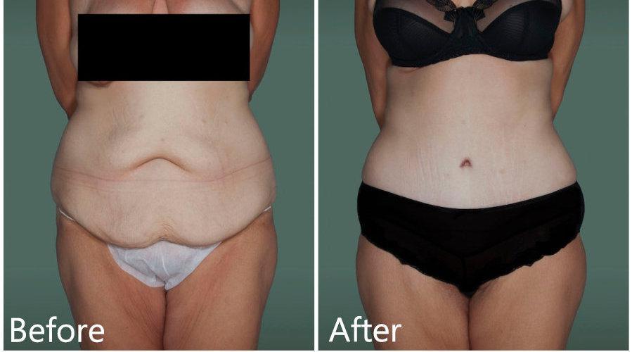 腹壁整形术,可以改善女性孕后腹直肌分离……