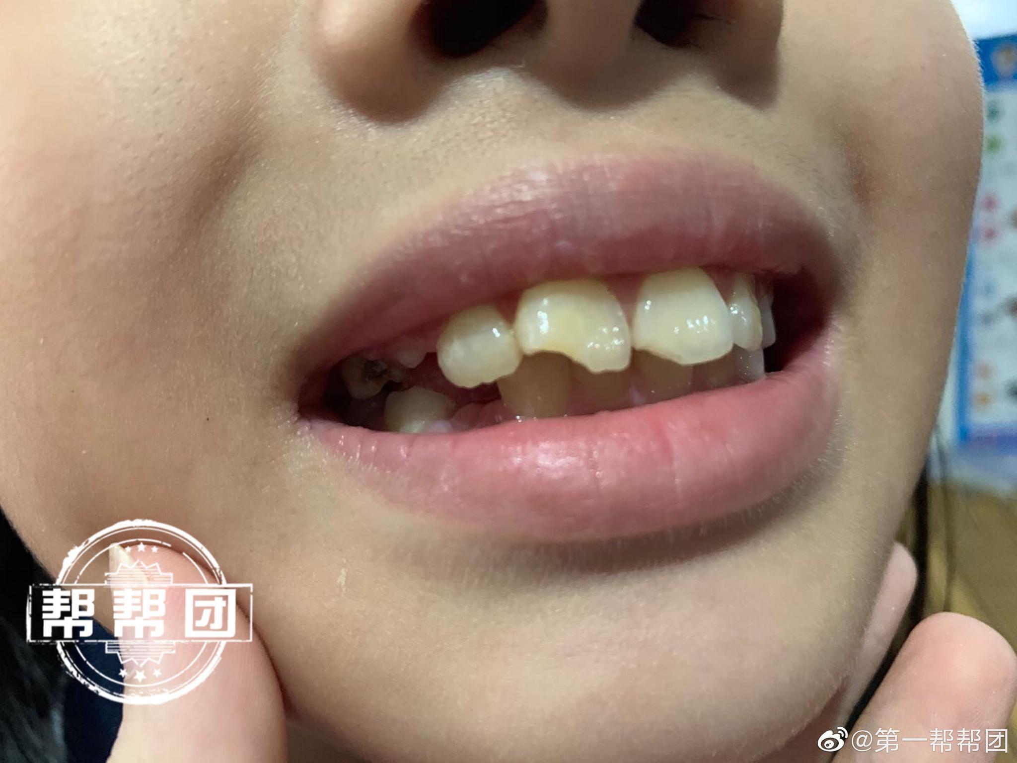 学生在学校摔倒,牙齿断裂,医药费谁来出?