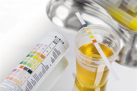 膀胱癌早期发现!检测尿液诊断膀胱癌
