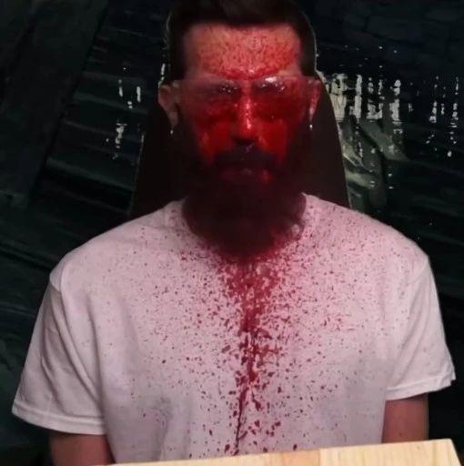 有玩家做了个自我惩罚机器,每在黑魂里挨一次打就会物理喷血