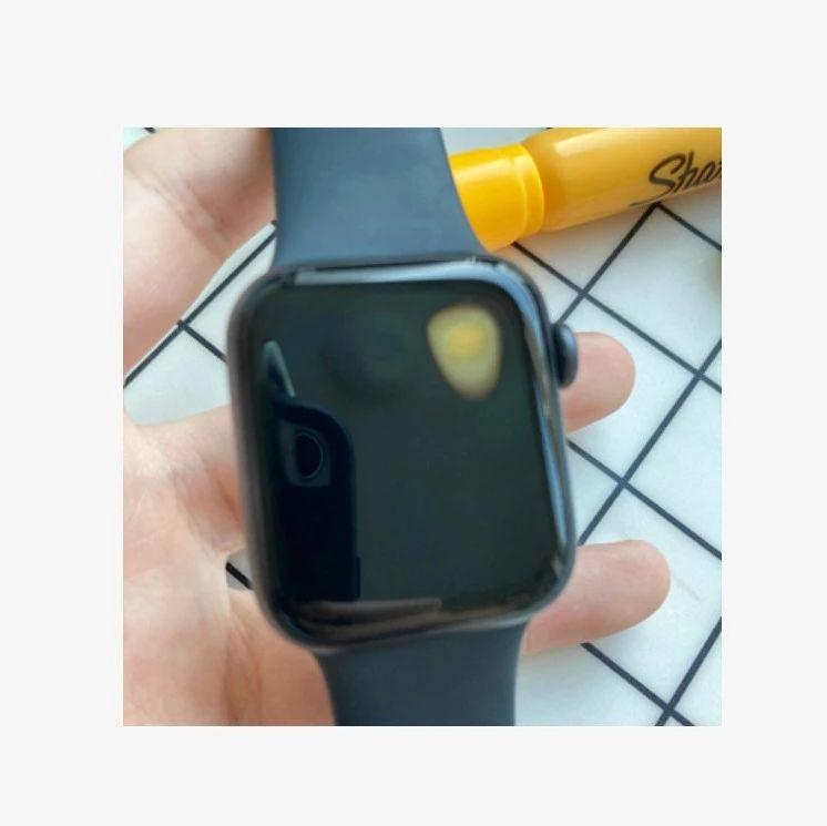 Apple Watch SE 出现过热问题,佩戴者手腕被烧伤