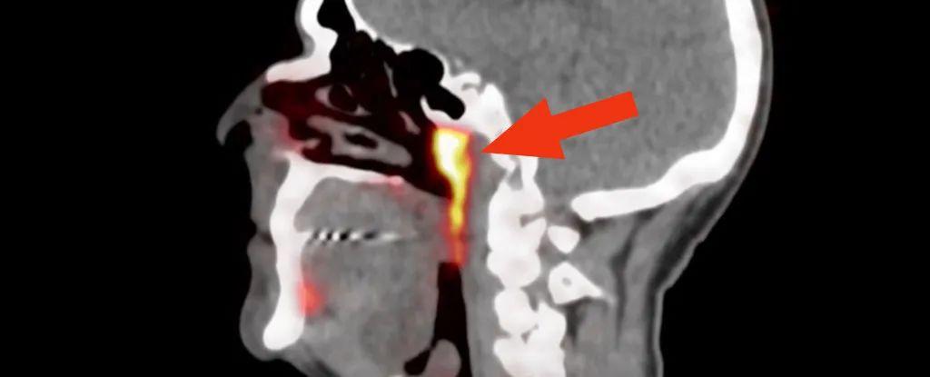 在我们的头颅中发现了新的主唾液腺