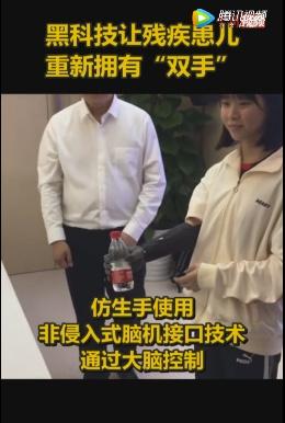 黑科技!广东一医院帮残疾患儿装智能仿生手