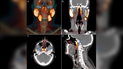 科学家在人类鼻后喉咙发现唾液腺:或有助减轻癌症治疗副作用