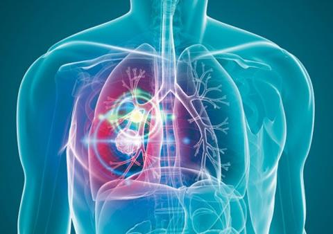 肺癌放疗期间常见的不良反应,以及应对方法