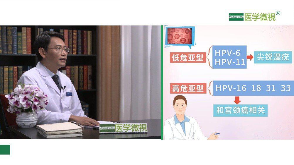 感染HPV(人乳头瘤病毒)就会得宫颈癌吗?