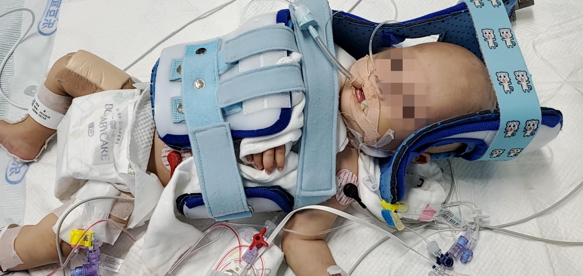 """手术缝合线比头发丝还细!新生儿臂丛神经""""连根拔起"""",上海市儿童医院重建神经桥梁"""