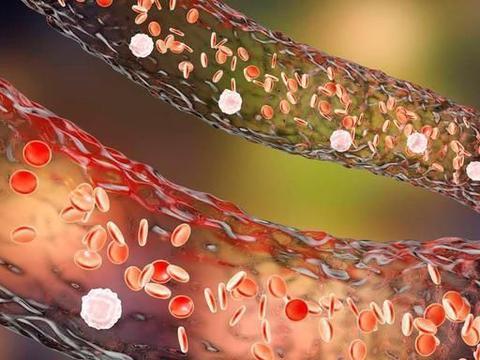"""血脂高的人,""""头部""""会出现4个异常,假若没有,恭喜血管还不错"""