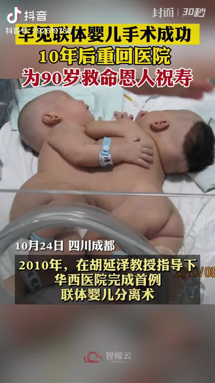 罕见联体婴儿华华西西十岁啦!