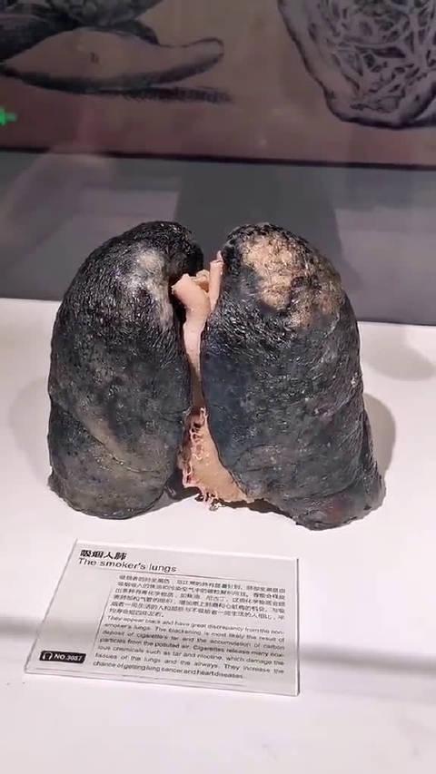 估计我爸现在的肺也是这个样子,几十年的烟龄了