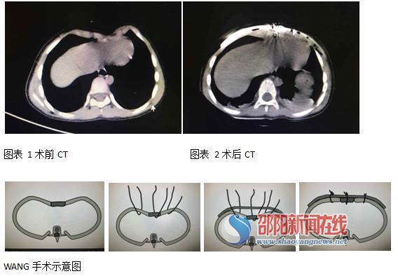 邵阳市中心医院心胸外科成功开展邵阳地区首例Wang手术