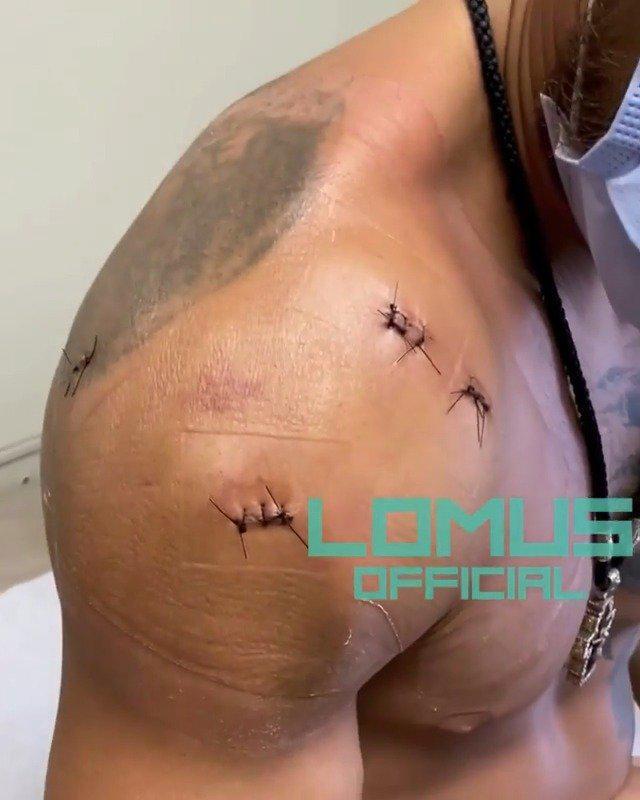 瓦西里·洛马琴科的肩伤手术非常顺利……