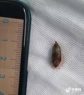 """异物卡在孩子气管!威海市中心医院儿科纤支镜技术""""精准""""取出1.5cm枣核"""