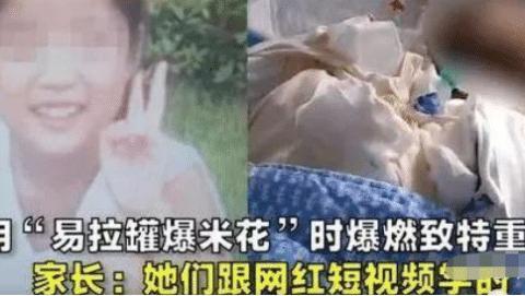 14岁少女模仿网红易拉罐烤爆米花,导致全身96%烧伤,害人不浅!