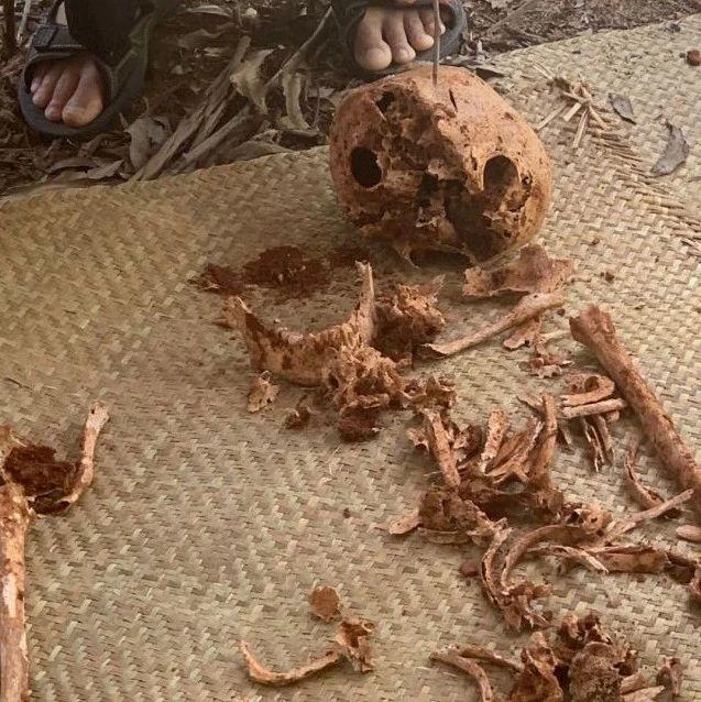 """【速豹原创】""""湛江杀人案""""27年后开棺验尸头骨刀痕依然清晰!无法进行DNA鉴定、卷宗丢失…如何定罪?"""