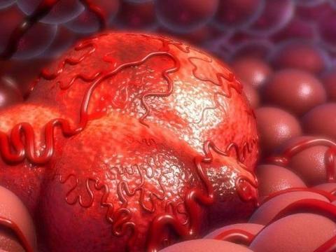 """女性子宫病变前,月经会发出5个""""求救""""信号,别置之不理"""