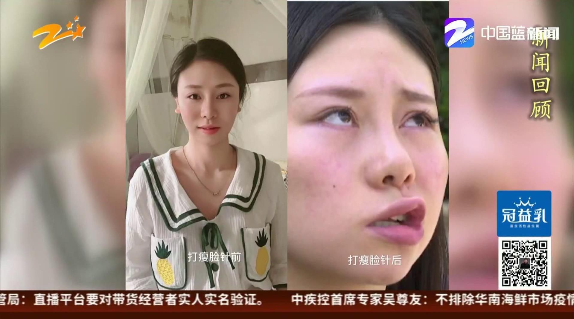 29岁姑娘打瘦脸针后面瘫基本恢复 整形机构承担全部费用