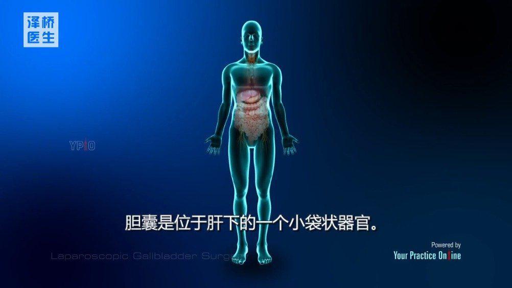 腹腔镜胆囊手术 腹腔镜胆囊切除术在临床上应用的非常广泛……