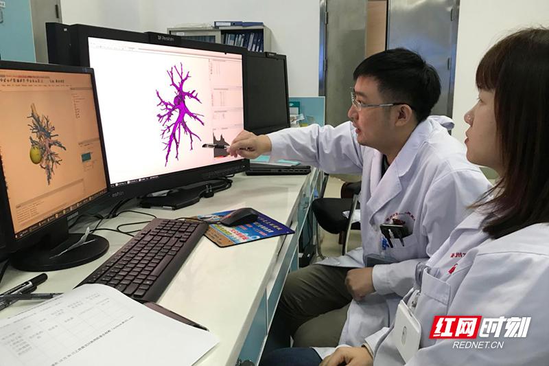 郴州市人民医院南院3D打印技术应用于胸腔镜精准肺段切除 全省领先