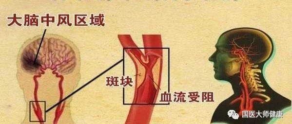 50岁后血管斑块疯长!只需10秒,打开化栓开关