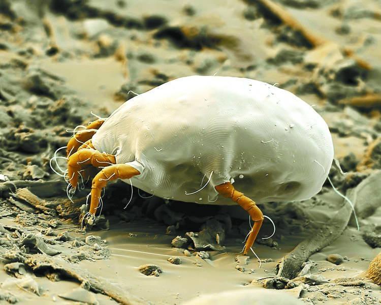 你的皮肤老发痒,或是螨虫在作怪