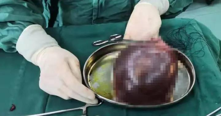 """最孝顺的""""带货"""":婴儿出生带出母亲体内一卵巢囊肿"""