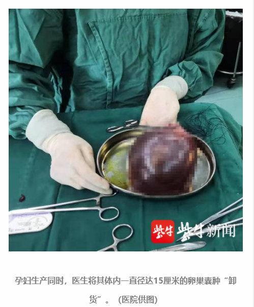 最孝顺的带货:婴儿出生带出母亲体内一卵巢囊肿