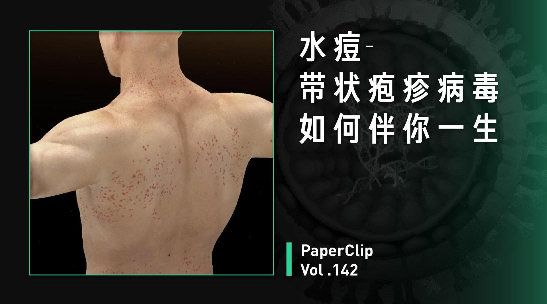 水痘-带状疱疹病毒如何伴你一生?