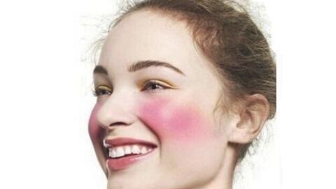 脸部发红发烫怎么快速消红 修复敏感肌红血丝的有效方法