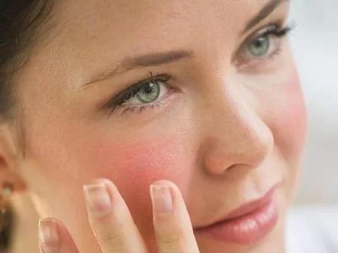 敏感肌肤,有红血丝,冬季该怎么护肤?