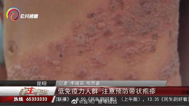 秋冬季这几类人易得带状疱疹 感染后会长期潜伏 医生支招来预防