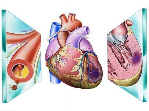 氨氯地平联合阿托伐他汀,协同降压,延缓和缩小动脉粥样硬化斑块
