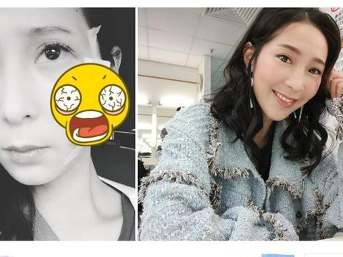 29岁女星吴嘉仪面部受伤,紧急送医缝4针,担心破相哭了一整晚