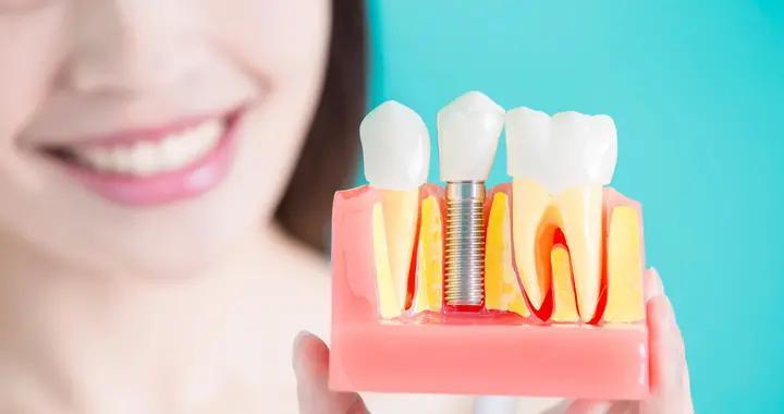 种植牙术后该怎么护理?这些事项要注意