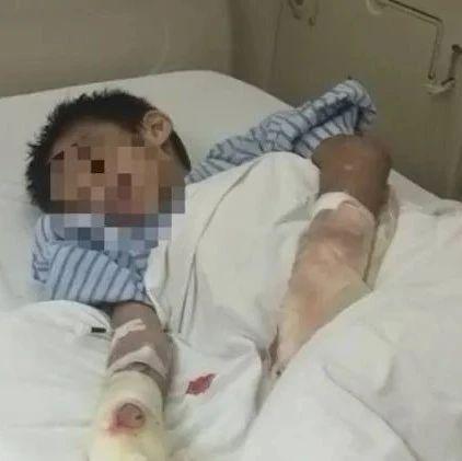 茂名七岁男童被父亲烫伤,已接受植皮!双臂基本保住