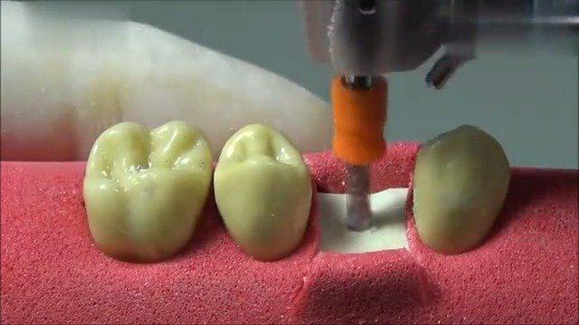 看了这个种牙实操视频,腮帮子疼,一定要保护好牙齿啊