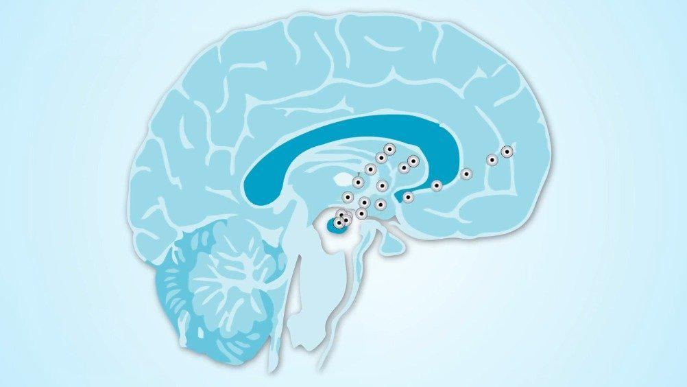 帕金森病 帕金森病的诊断主要依靠病史、临床症状及体征……