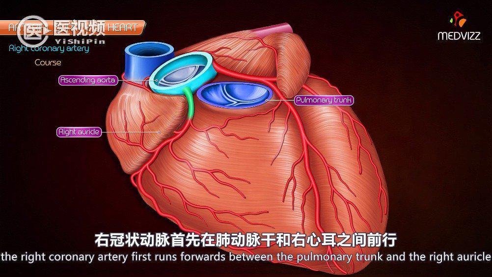 心梗的主要原因是冠状动脉粥样硬化……