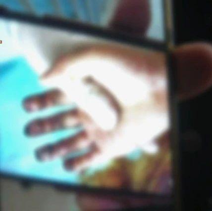 女儿两根手指被网购绞肉机切断,这个妈妈含泪提醒