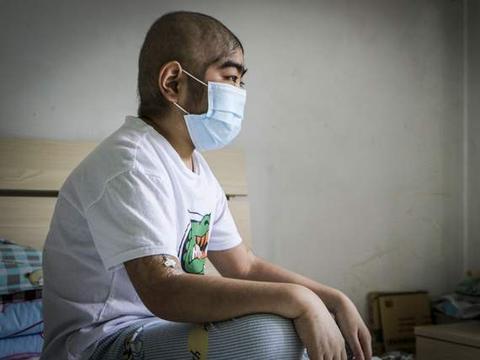 小男孩患重症后面容大变,远看像大叔遭同伴嘲笑,妹妹捐骨髓相救