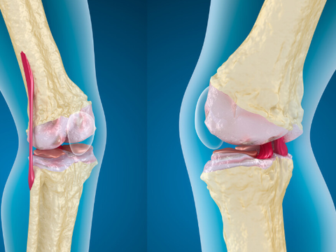 老年人骨质疏松怎么办?5种常见疗法,助你增强体质,身体更硬朗