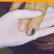 吓人!20年前的旧伤痕居然癌变了…这个部位受伤千万别忽视