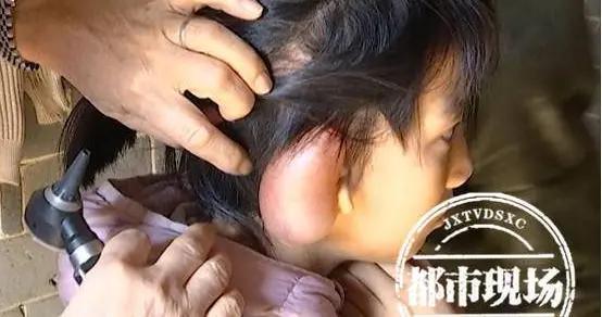 9岁女孩右耳残疾孤僻自卑 抱养家庭倾其所有:哪怕苦点也要治