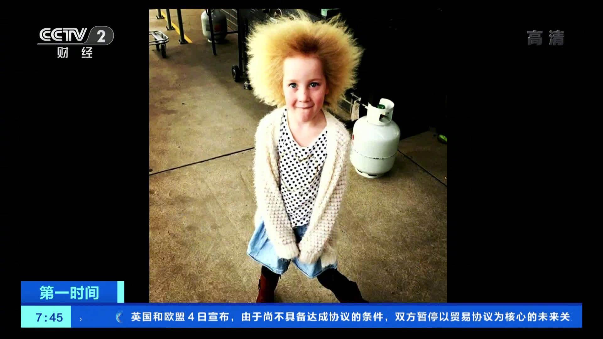 """10岁女孩患难梳头发综合征 和爱因斯坦""""同款"""""""