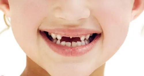 """想要孩子乳牙健康,就不要放任这五个""""恶习"""",改掉宝宝坏习惯"""