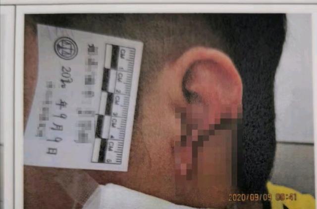 三瓶酒被放进胃里后 这个上海男人咬掉了他多年的朋友和邻居的耳朵